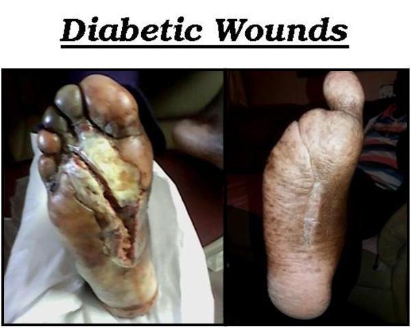 Diabetic Wounds