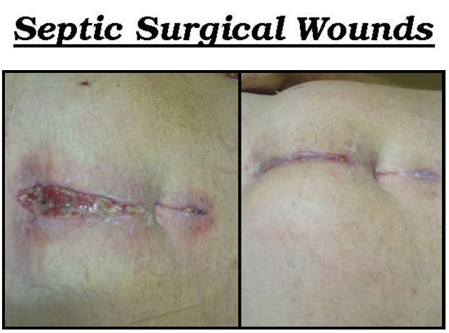 Septic Surgical Wounds