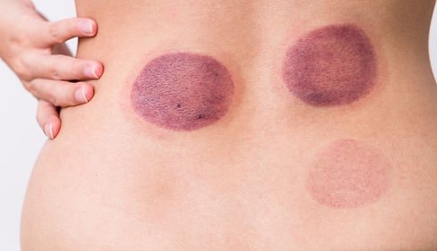 Cupping-Marks-cropped_edited.jpg