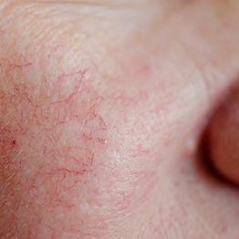 1000x1000-Rosacea-Skin.jpg