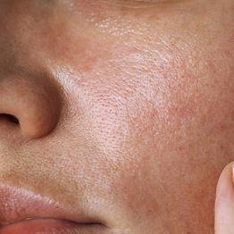 1000x1000-Oily-Skin.jpg