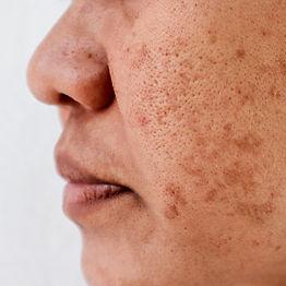 1000x1000-PIH-Skin.jpg