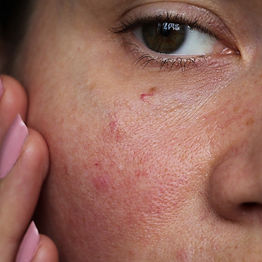 1000x1000-Sensitive-Skin.jpg