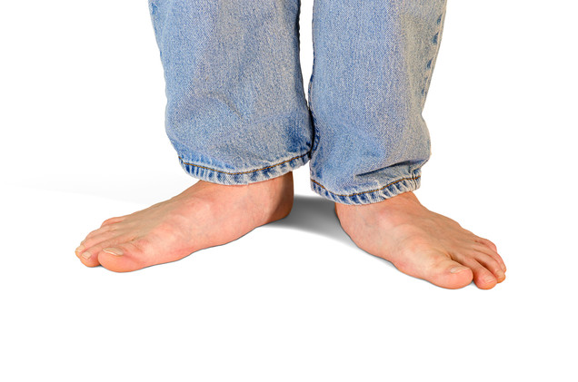 Children with Flat Feet. Do they need treatment?