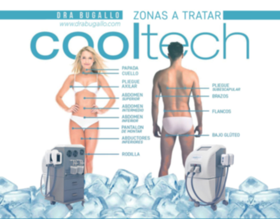 ZONAS A TRATAR.jpg
