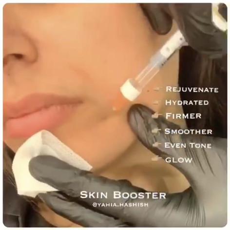 Dr. Yahia Hashish using Vital Skinboosters