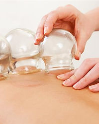 Cupping_Therapy.jpg