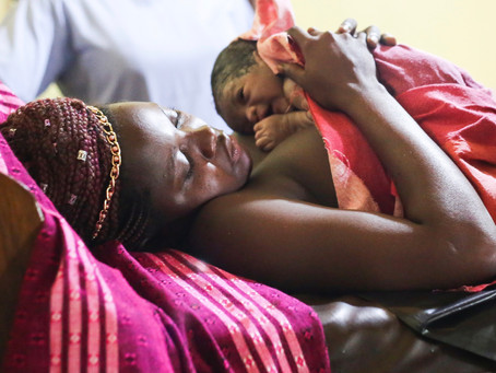 C-sections can contribute to higher mortality rates in Sub Saharan Africa