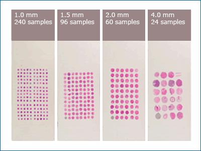Microarrays de tecidos