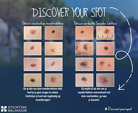 Stichting Melanoom Discover Your Spot