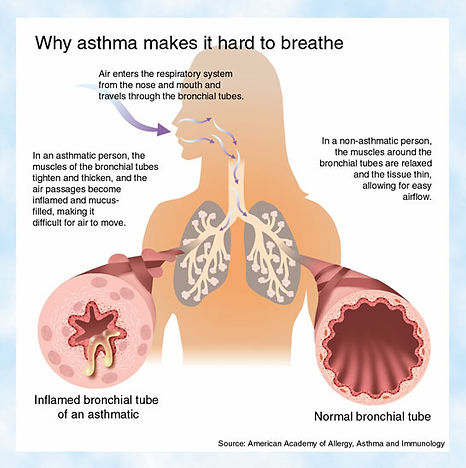 asthma להוסיף לוידאו מה זה אסטמה, מ 15״
