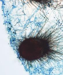 mold-chaetomium.jpg