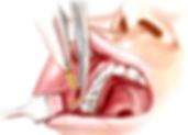 Cirugía de mejillas| Bichectomía