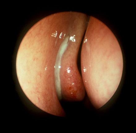 Rinosinusitis| Otorrinolaringología