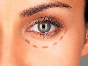Cirugía de bolsas de los ojos