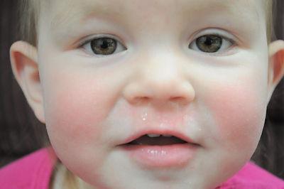tratamiento de rinitis, alergias respiratorias