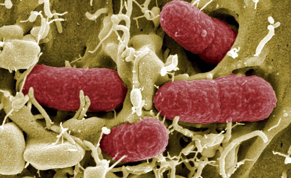 Colonia de bacterias en un ser vivo. EFE