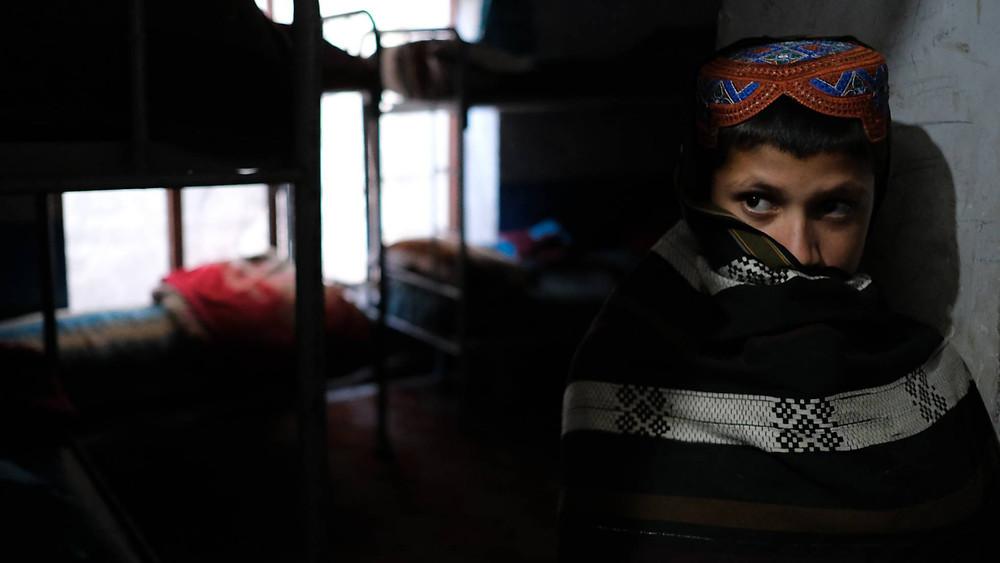 Un niños de Afganistán, uno de los países con peores datos de malnutrición. ERIC BOUVET UNICEF