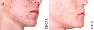 Celluma clears up acne