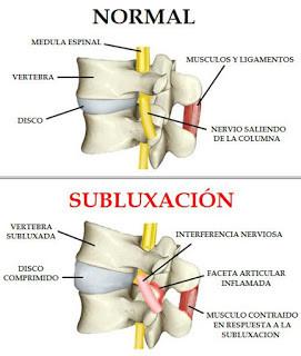 subluxacion.jpg