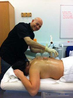 fire-cupping-1211191_1280