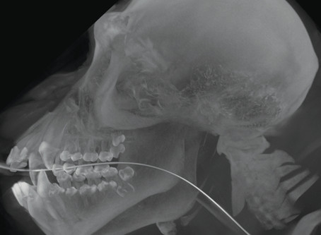 Chimpanzee Gets CT - Using VIMAGO™ Veterinary HDVI Scanner