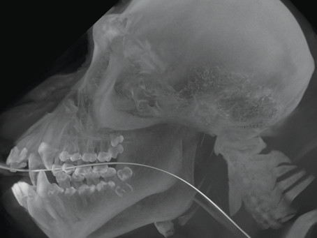 Chimpanzee Gets CT - Using VIMAGO™ Veterinary HDVI Scanner