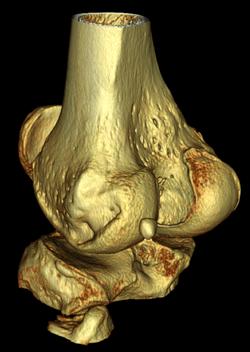 EHH - Knee 3D