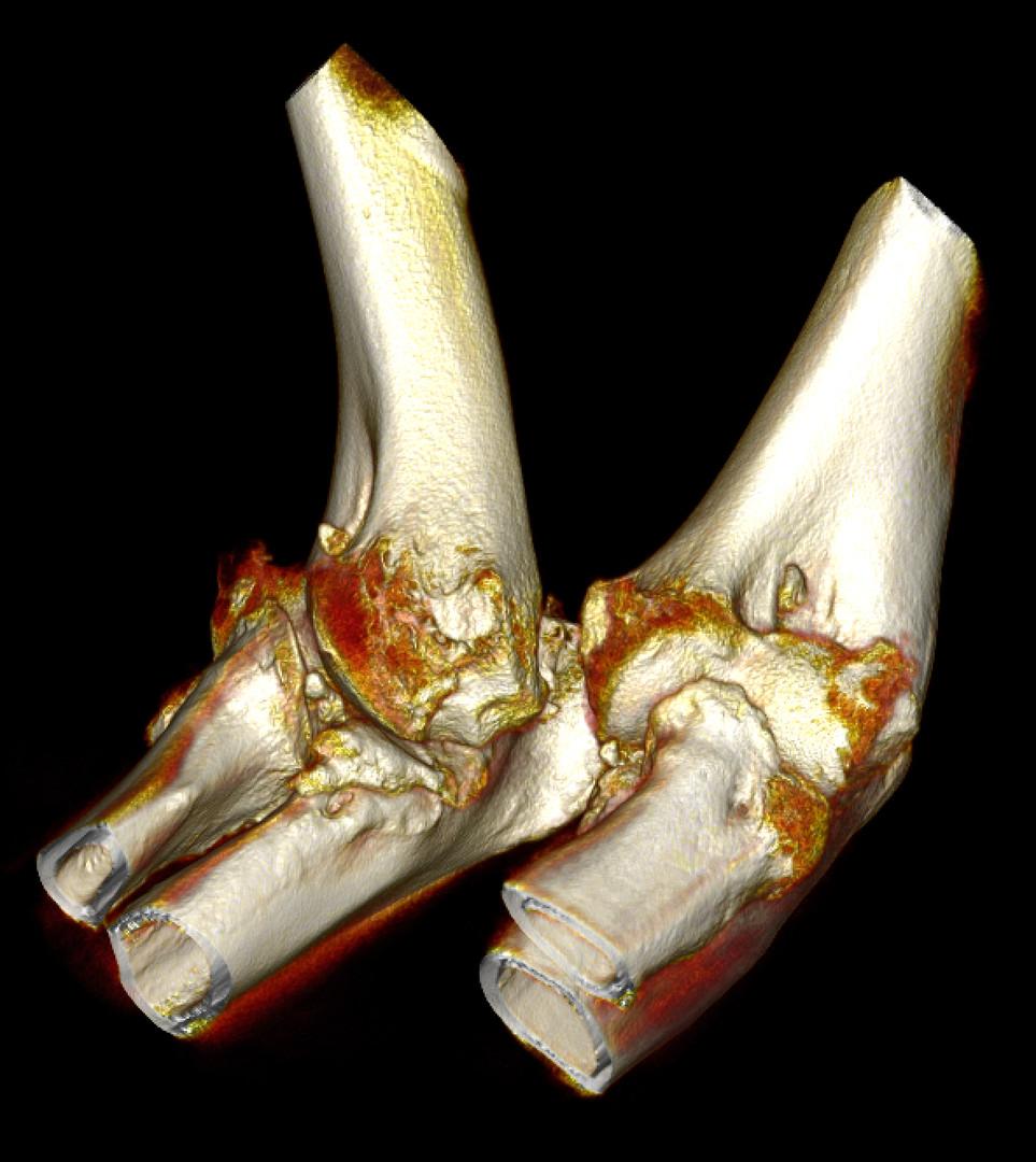3D Elbows.jpg
