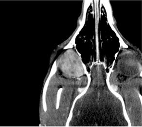 CT Case Review: Meningioma