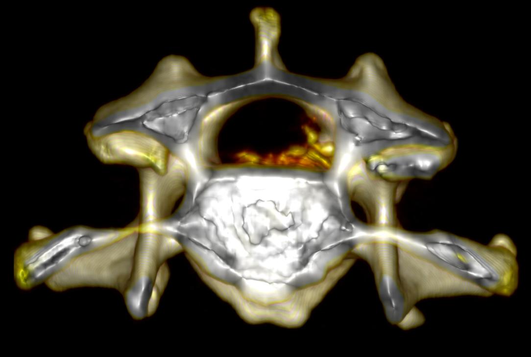 EAH - Vimago™ Spine