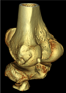 Knee - 4