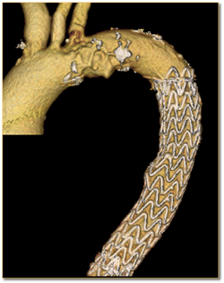 7. Chest CT scan after aortic stent