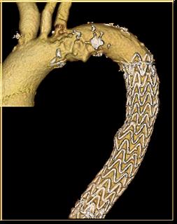 Dr. Grayson Wheatley TEVAR EVAR endovascular aortic aorta aneurysm dissection