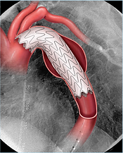 aortic aneurysm, chest, thoracic aneurysm, endovascular, aorta