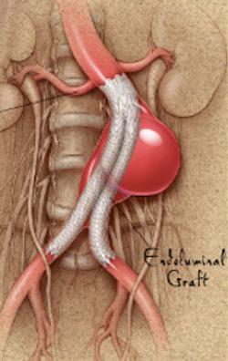EVAR aortic aneurysm