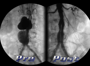 aortic stent, abdominal aneurysm, aortic aneurysm, endovascular