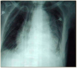 1. Aortic aneurysm on chest X-ray