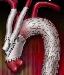 Hybrid Aortic Arch Repair