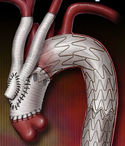 aortic surgery, endovascular, aortic stent