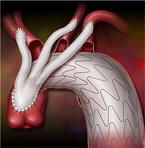 aortic arch, aortic aneurysm, aortic dissection, aorta