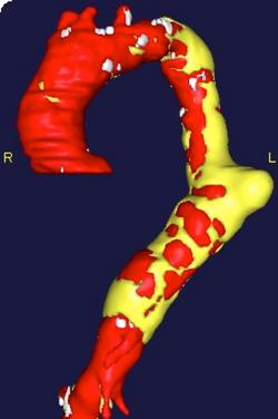 4. Chest CT scan 3D reconstruction