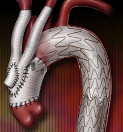 Dr. Grayson Wheatley Hybrid Arch Repair TEVAR Open Heart Surgery Minimally-invasive aortic stent