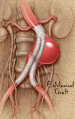 EVAR Endovacular aneurysm repair Aortic Stent AAA Dr. Grayson Wheatley Nashville, Tennessee