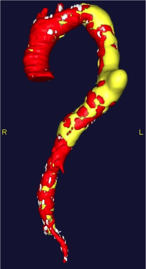 3. Chest CT scan 3D reconstruction