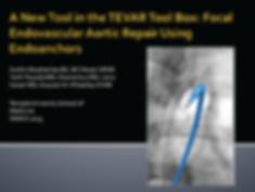 Dr. Grayson Wheatley Research Presentation ISMICS Endovascular TEVAR Aorta Aneurym Dissection