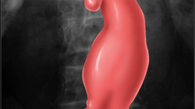 Welcome to the Aortic Aneurysm Blog!