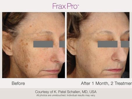 Frax Pro - det nya fraktionella systemet med två våglängder
