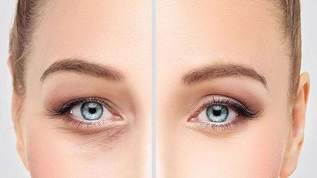 Acovista - Chirurgia annessi oculari.jpg