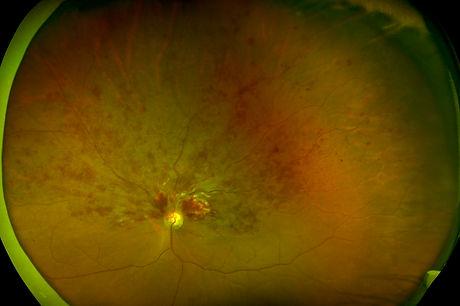 Occlusione venosa retinica.jpg